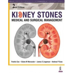 Kidney Stones: Medical and Surgical Management
