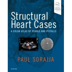 Structural Heart Cases, 1st Edition A Color Atlas of Pearls and Pitfalls
