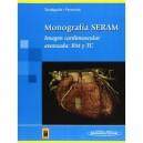 """Imagen Cardiovascular Avanzada: RM y TC """"Monografía SERAM"""""""