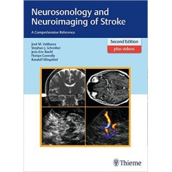 Neurosonology-and-Neuroimaging-of-Stroke