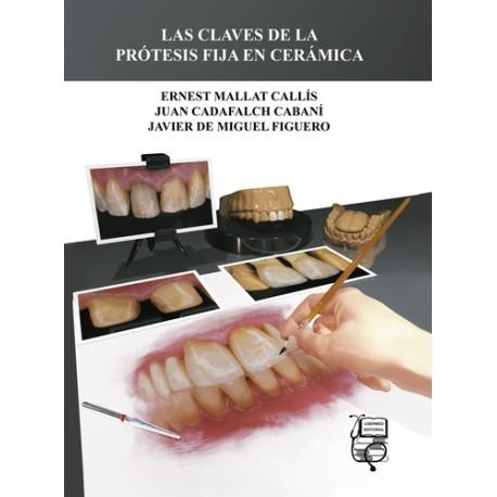 Las Claves de la Protesis fija en Cerámica
