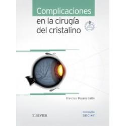 Complicaciones en la cirugía del cristalino + acceso online: Monografías SECOIR