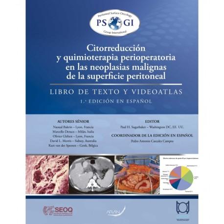 Citorreducción y Quimioterapia Perioperatoria en las Neoplasias Malignas de la Superficie Peritoneal