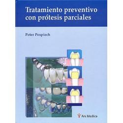 Tratamiento preventivo con prótesis parciales