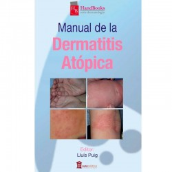 Manual de la dermatitis atópica