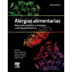 Alergias alimentarias. Reacciones adversas a alimentos y aditivos alimentarios: 5ª edición