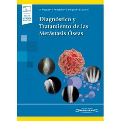 Diagnóstico y Tratamiento de las Metástasis Óseas (incluye versión digital)