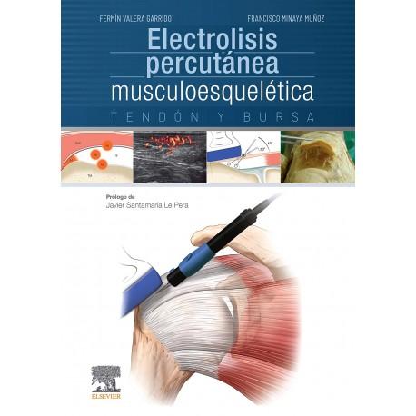 Electrolisis percutánea musculoesquelética. Tendón y bursa