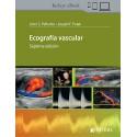 Ecografía Vascular