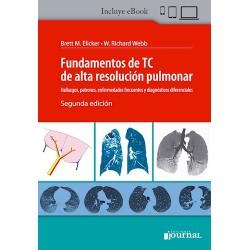 Fundamentos de TC de Alta Resolución Pulmonar. Hallazgos, Patrones, Enfermedades Frecuentes y Diagnósticos Diferenciales