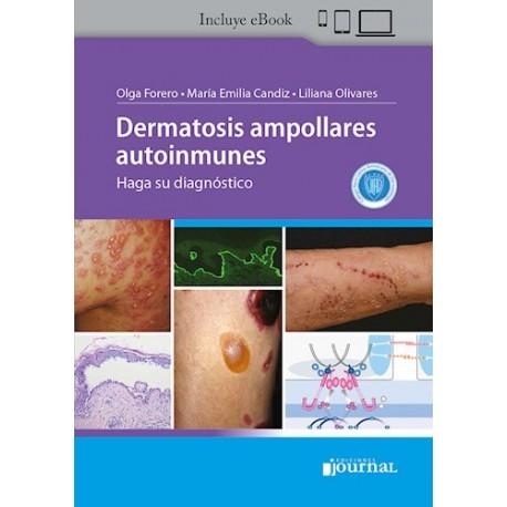 Dermatosis Ampollares Autoinmunes. Haga su Diagnóstico